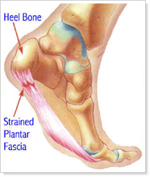 Plantar Fasciitis Chiropractors for Chandler, Sun Lakes, and Ocotillo - Arizona