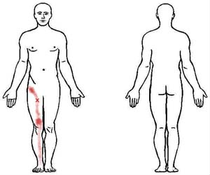 adductor longus and brevis trigger point