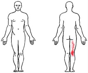 biceps femoris trigger point