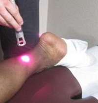 cold laser treatment achilles tendon