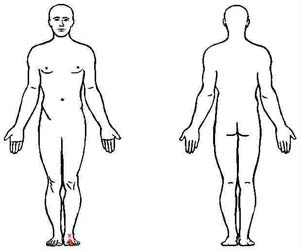 interossei of foot trigger point