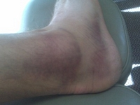 lateral-sprained-ankle-old.jpg