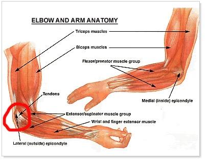 Chiropractic Medial Epicondylitis - Golfers Elbow