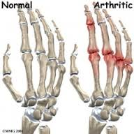normal degenerative hand