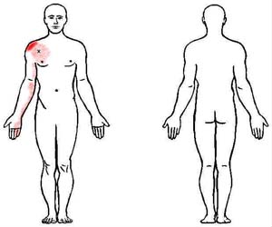 pectoralis minimus trigger point