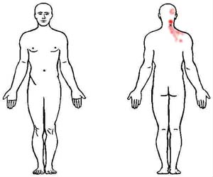 semispinalis capitis trigger point