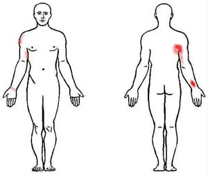 subscapularis trigger point