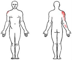 teres major trigger point