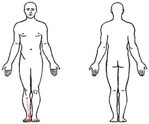 tibialis anterior trigger point