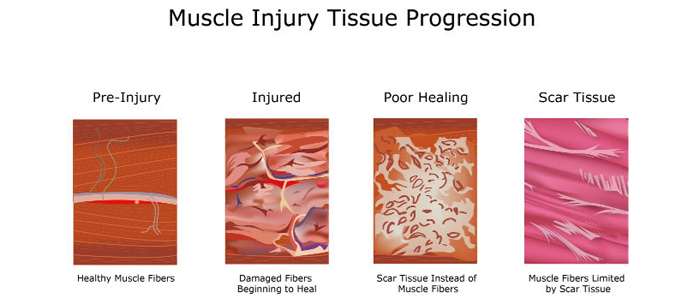 tissue progression