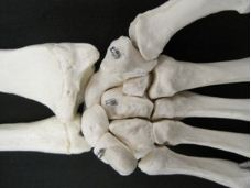traumatic fall fractures