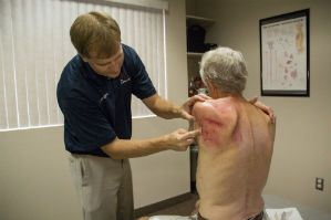typical weightlifting injuries